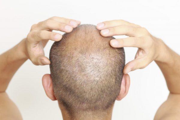 Các sản phẩm thuốc mọc tóc có công dụng chính là chữa rụng tóc và kích thích mọc tóc